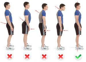 Rieducazione posturale Vomero